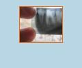 Где сделать снимок зуба в Саратове?